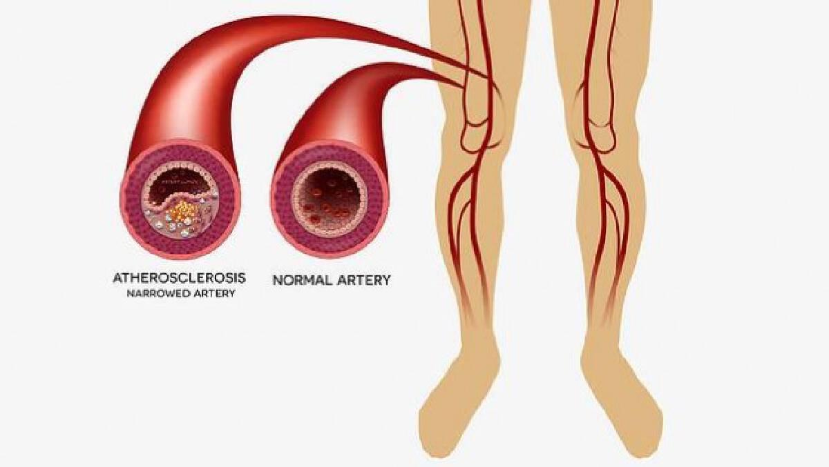 เพจดังแนะ 10 วิธีดูแลและป้องกันโรคหลอดเลือดขาตีบ