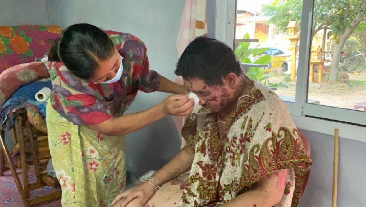 สุดอาภัพ วอนช่วยหนุ่มเมืองช้างวัย 22 ปี ป่วยพุพองทั้งตัว