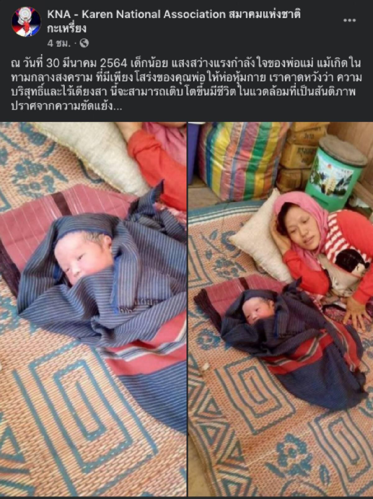 เปิดภาพสุดเศร้า ! ทารกชาวกะเหรี่ยงเกิดใหม่ช่วงภัยสงคราม มีเพียงโสร่งพ่อเท่านั้นที่ใช้ห่อหุ้มร่างกาย