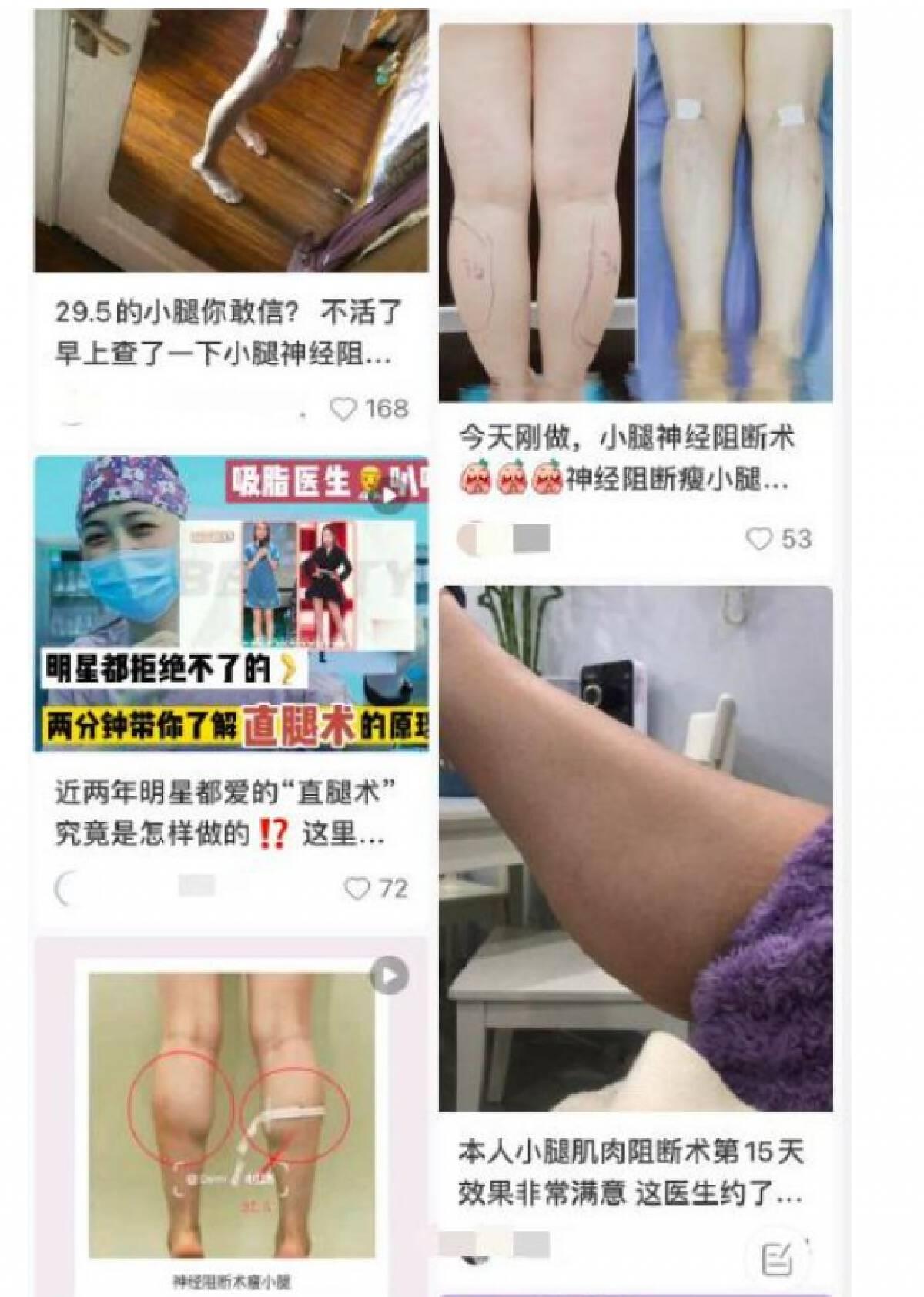 """ฮือฮา! สาวจีนคลั่งผ่าตัด """"ขาเรียว"""" ราคาแพงทะลุแสน"""