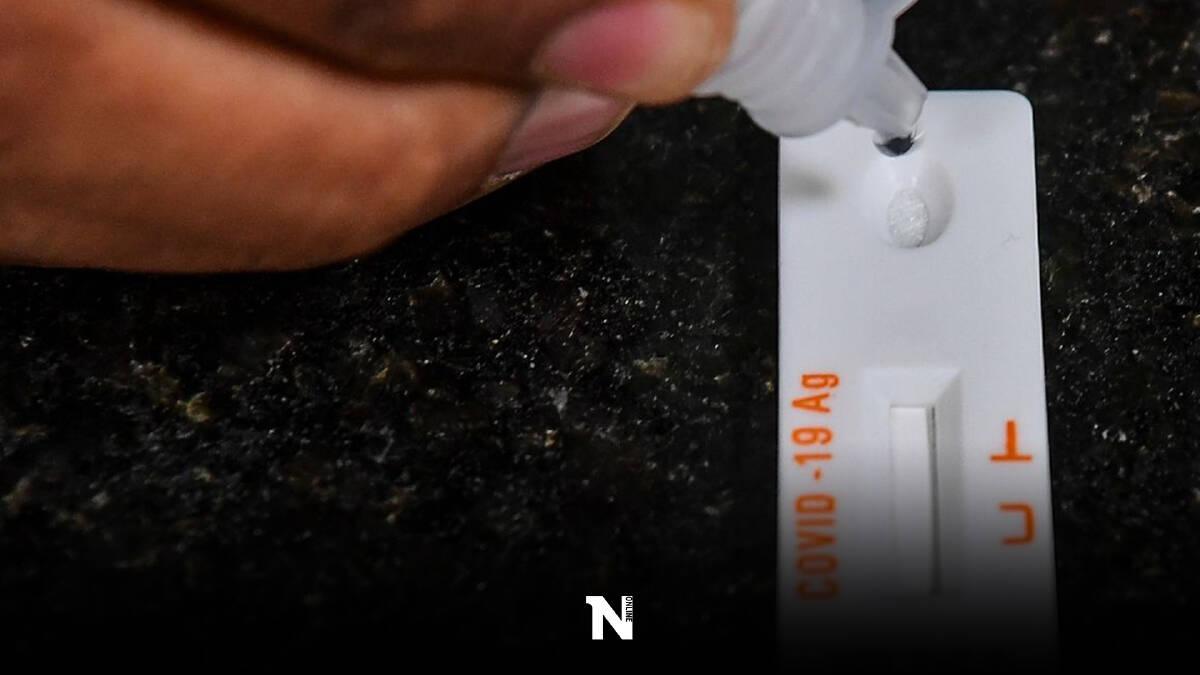 สปสช.ย้ำใช้ผลตรวจ RT-PCR เคลมประกันโควิดได้เลย ไม่ต้องใช้ใบรับรองแพทย์
