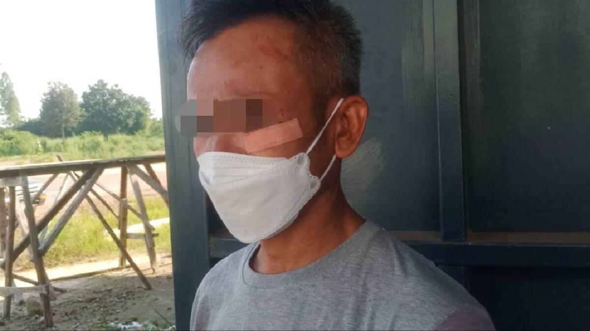 หนุ่มถูกญาติภรรยา 5 คนรุมทำร้าย ลูกวัย 12 ปีถ่ายคลิปไว้