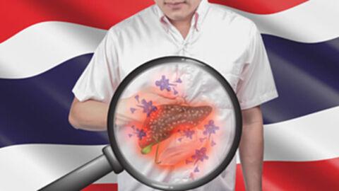 มะเร็งตับพบมากเป็นอันดับ 1 ของมะเร็งทั้งหมดในคนไทย